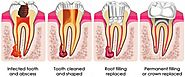 What is a Root Canal Treatment Melbourne And How it is Beneficial?