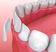 The Patient Must Choose The Best Dentist For Porcelain Veneers Melbourne