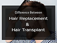 Hair Transplant Vs Hair Replacement: What everyone must know about it