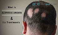 Alopecia Areata Treatment: How Alopecia Areata can be cured?