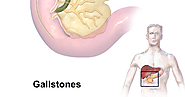 Topmost Best Gallstones Treatment Pune: Easy To Get Gallstones Treatment In Pune