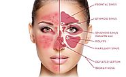 Global Rosacea Treatment Industry Analysis, Market Key Trends, Growth, Shares, Current and Future Players