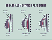 What Can A Breast Augmentation Surgery Do For Me?