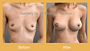 Breast Surgery: An Overview
