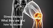 Best Orthopedic In Chennai: Stress Fracture: What They Are And How To Recover