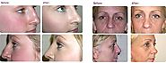 Benefits of Rhinoplasty or Nose Job