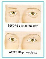 Know more about Blepharoplasty or Eyelid Correction Surgery
