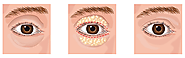 Get More Details about Blepharoplasty or Eyelid Correction Surgery
