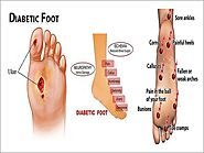 Diabetic Foot Care Clinic Tamil Nadu | Madurai Footcare Centre