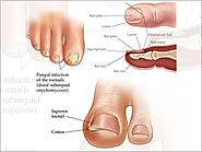 Toenail Fungus Remedies | Fungal Nails Treatment in Tamil Nadu