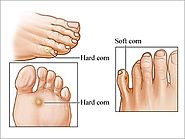Corn on Foot Symptoms, Causes and Treatment | Madurai Footcare
