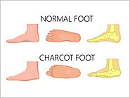 Charcot Specialist Madurai | Charcot Foot Treatment Tamilnadu - Madurai Foot Care