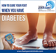 Take Care Of Your Diabetic Foot