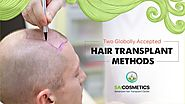Get Best Prime World Accepted Hair Transplant by Sai Cosmetics