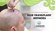 Effective Hair Transplant Method by Sai Cosmetics