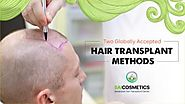 Get Top-Quality Hair Transplant Methods by Sai Cosmetics