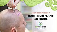 Prime Globally Accepted Hair Transplant Methods