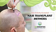 Read Which Method is best for Hair Transplant | Sai Cosmetics