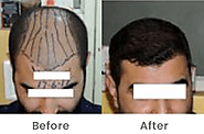 Get Cosmetic Surgery and Hair Transplant in Pune by Sai Cosmetics