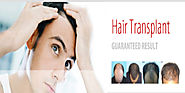 Hair Loss Treatment in Pune by Sai Cosmetics
