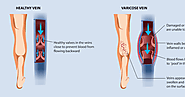 How Do You Get Varicose Veins In Your Legs
