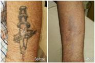 Does laser tattoo removal really work?