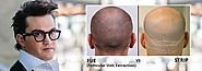 Book Your Appointment at FUE Hair Transplant New Delhi