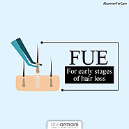 FUE for Early Stages of Hair Loss