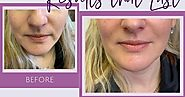 Things To Know Before Taking Juvederm Lip Injections