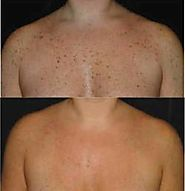 Age Spot Removal | Dermatology Specialists of Charlotte