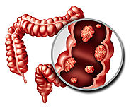 Colorectal Cancer Treatment in Chennai | Cancer Removal Surgery India