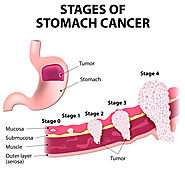 Stomach Cancer Treatment in Chennai, India | Gastric Cancer Surgery