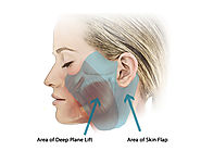 Facelift for patients in the Bay Area, including San Francisco, Palo Alto and San Jose.