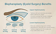 Blepharoplasty for patients in the Bay Area, including San Francisco, Palo Alto and San Jose.