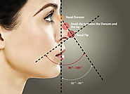 Rhinoplasty for patients in the Bay Area, including San Francisco, Palo Alto and San Jose.
