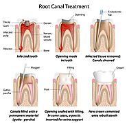 Root canal Melbourne Dentist: What things can help you to deal with symptoms of a root canal?