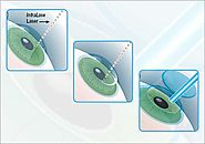 Bladeless LASIK / IntraLase