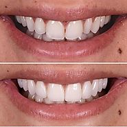 Want to Beam a Perfect Smile Braces can help you out! - Dental Clinic Health