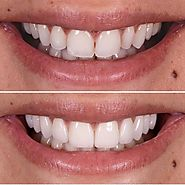 Want to Beam a Perfect Smile Braces can help you out! :: Mumbaidentalclinic