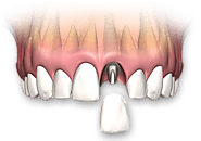 Reasons Why Dental Implants Bridges Are Better Than Dentures