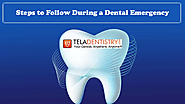Steps to Follow During a Dental Emergency