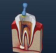 Website at https://www.bluetoothdentalclinic.co.in/root-canal-treatment