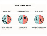 Male Infertility Causes, Symptoms and Treatment Mumbai | Semen Analysis India