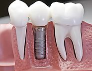 Advantages of Dental Implants Melbourne - Holistic Dental Melbourne