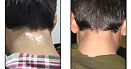 Skin Artistry-Top-Notch Clinic For Vitiligo Treatment In Gujarat