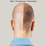 Factors To Consider Prior To Hair Transplant