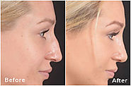 Website at https://www.maxwellaesthetics.com/facial-surgery-nashville/rhinoplasty/
