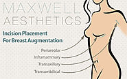 Website at https://www.maxwellaesthetics.com/breast-surgery-nashville/breast-augmentation/