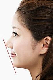 Rhinoplasty Surgery - Arra Aesthetics in Pune, India