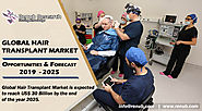 Hair Transplant Market, By Methods, Products, Therapy, Gender (Male, Female), Service Provider, Region (North America...